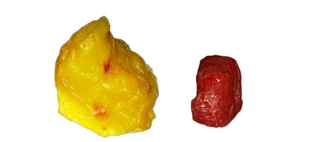 500g grasa vs 500 g musculo